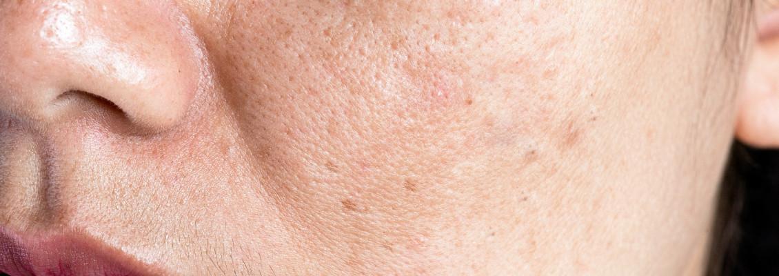 Apakah Pori - Pori Wajah Dapat Dikecilkan?