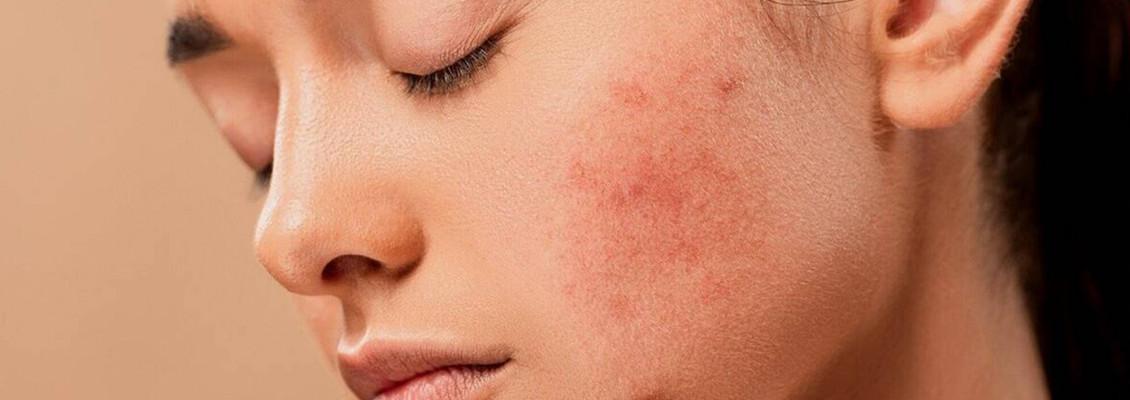 Penyebab Redness pada Wajah dan  Cara Ampuh Mengatasinya